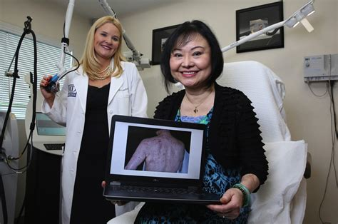 Vietnam War's 'Napalm Girl' gets pain relief from laser