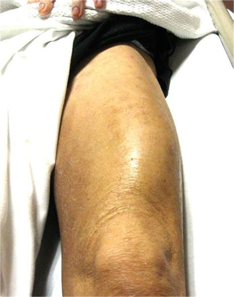 Infectious Myositis Causes and Treatment   Bone and Spine