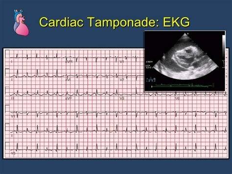 Pericardial Dse Cath Lab