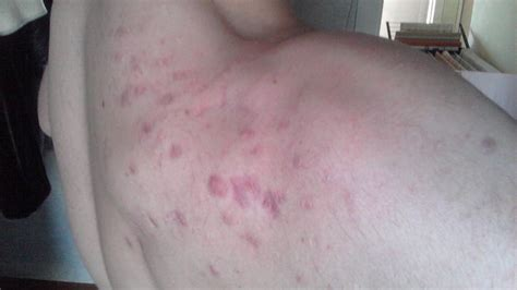 What Really Can Be Done To Keloids/hypertrophic Scars