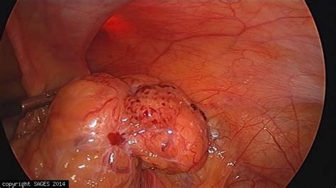Reduced right inguinal hernia -SAGES Image Library